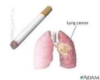 Symptoms And Treatment Of Small Cell Lung Cancer