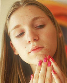 Where Can I Find Pictures Of Acne