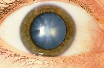 Health And Fitness: Diseases That Cause Blindness!