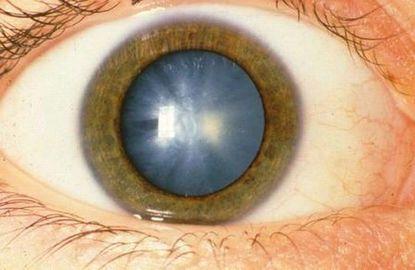 How To Treat Retinoblastoma