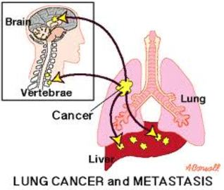 Most Common Symptoms Of Early Cancer Lung