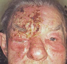How To Deal With Shingles Diseases