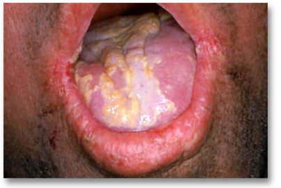 Does An Oral Yeast Infection Cause a Cottony Feeling in the Mouth?