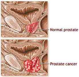 About Symptoms And Treatments For Prostate Cancer