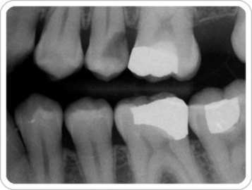 How To Diagnose Diseases Of the Gums
