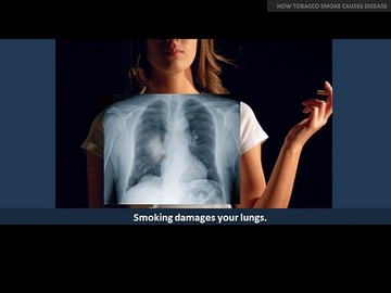 5 Common Signs Of Diseases Caused By Smoking
