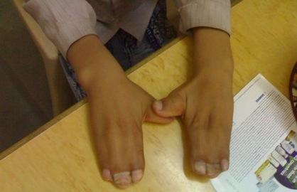 Causes And Treatments For Syndactyly Of the Fingers