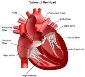 What are the different causes of heart diseases