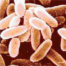 What you need to know about anthrax