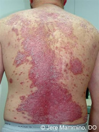 How To Prevent Psoriasis Skin Diseases