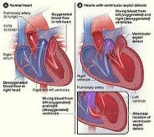 Types Of Diseases Of Cardiovascular System