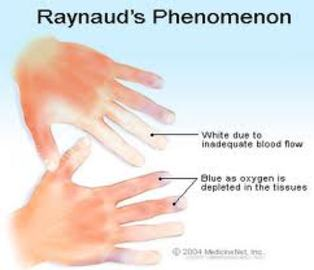 Why is raynaud's diseases dangerous for childrens