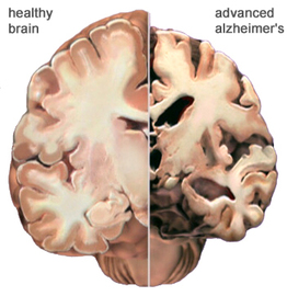 What Are The Causes And Treatment Of Alzheimer Diseases