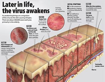 How To Protect Yourself From Shingles Diseases