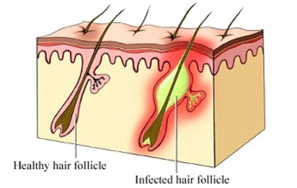 What To Do About An Ingrown Hair