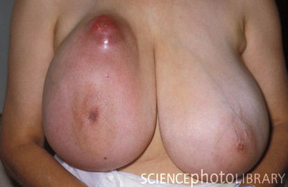 Breast For Cancer Treatments