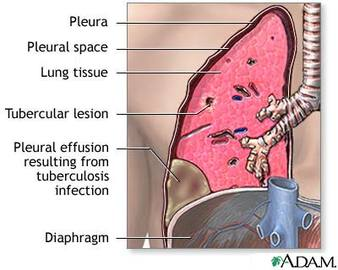Are Pleural Diseases Fatal?