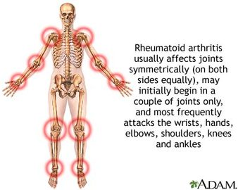 What Are The Causes Of Rheumatology Diseases