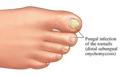 Remedies Of Fungal Diseases