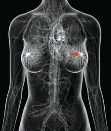 About Cancer Of Breast Tissue
