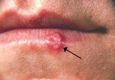 What Is Diseases Herpes