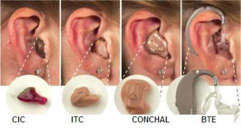 Cost Of Digital Hearing Aids