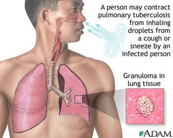 List  Of Diseases That Affect The Lungs