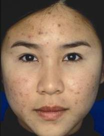 How Acne Scars Occur