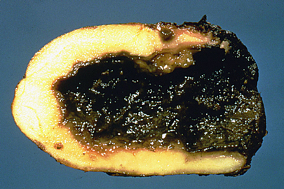 What Are The Causes Of Blackleg