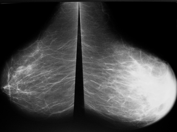 What Is the Final Stage Of Breast Cancer?