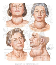 Endocrine Diseases That Are Hereditary