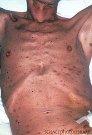 Does Aids Cause Symptoms Of Emaciation?