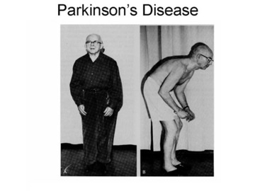How To Protect Yourself From Parkinsons Diseases