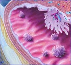 What Is Bladder Cancer?