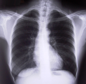 How To Deal With Pulmonary Diseases