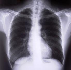 How To Prevent Pneumonia Diseases