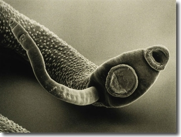 What Diseases Can Parasites Cause?