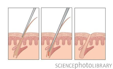 How To Use Electrolysis For Unwanted Hair