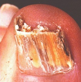 How To Prevent Nail Diseases Pictures