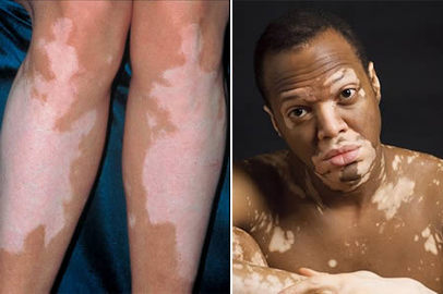 Most Common Examples Of Disease Of the Skin