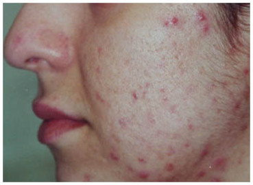 Symptoms Of Skin Diseases (with Pictures)