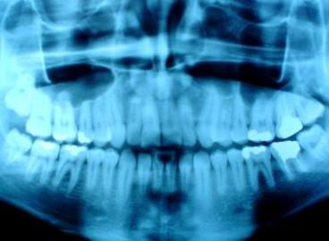 About the Chance Of Having Cancer After Having Dental X-Rays