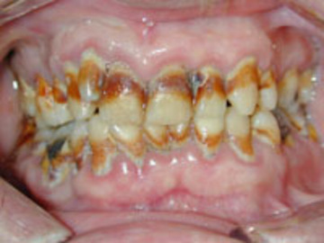 Does Chewing Tobacco Cause Cancer Of the Month