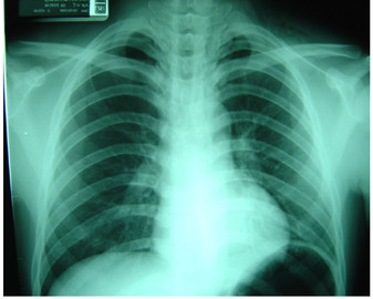 Chest Diseases That Are Life Threatening