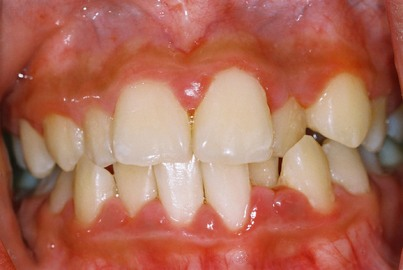 Are Periodontal Diseases Avoidable?