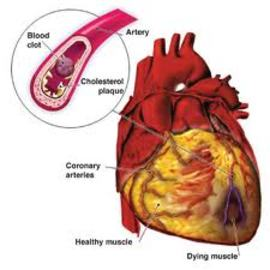 Factors that causes heart diseases