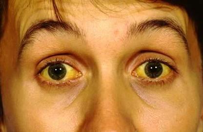 Eyes That Turn Yellows