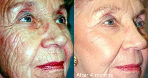 Skin Care For Tightening Skin