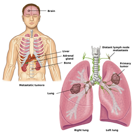 How Do I Determine Which Stage Lung Cancer I Have?