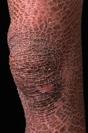 Skin Diseases - Pictures, Symptoms And Causes